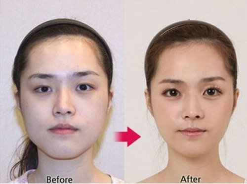 korean_plastic_surgery_20