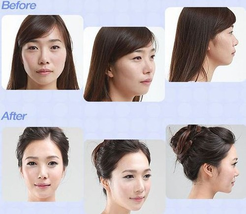 korean_plastic_surgery_49