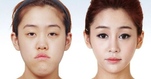korean_plastic_surgery_05