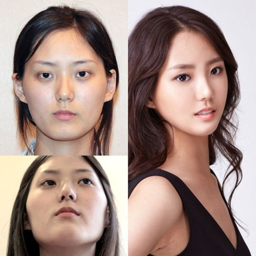 korean_plastic_surgery_30