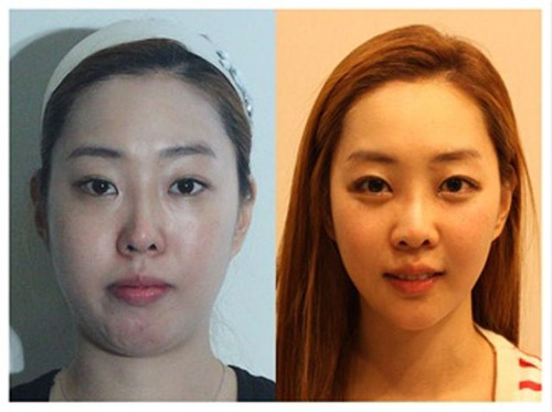 korean_plastic_surgery_24