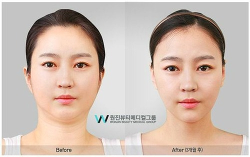 korean_plastic_surgery_45