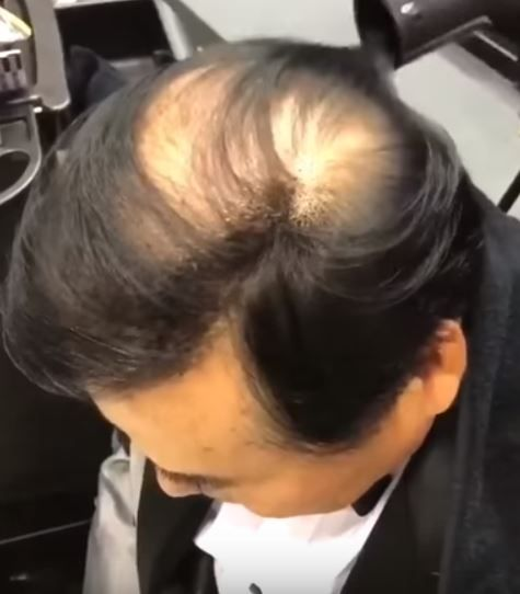 増毛パウダー