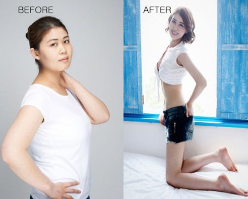 korean_plastic_surgery_40