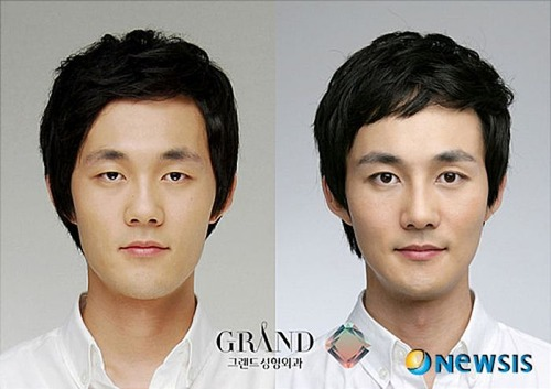 korean_plastic_surgery_11