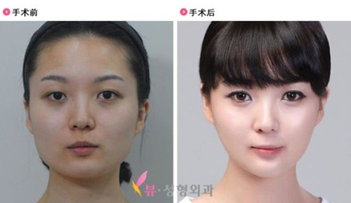 korean_plastic_surgery_42
