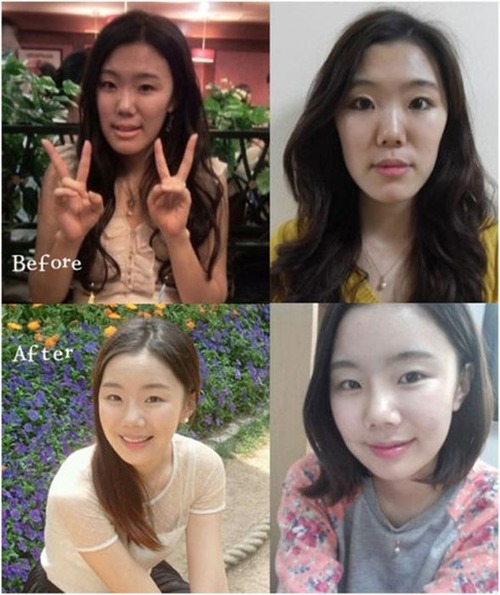 korean_plastic_surgery_34