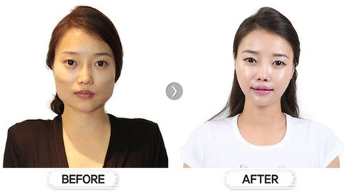 korean_plastic_surgery_23