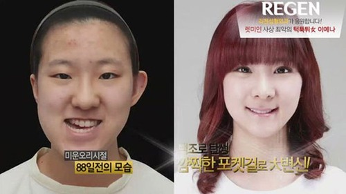 korean_plastic_surgery_37