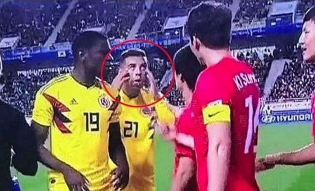 コロンビア人選手が人種差別