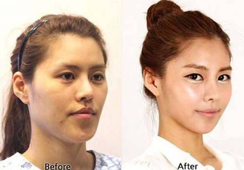 korean_plastic_surgery_10