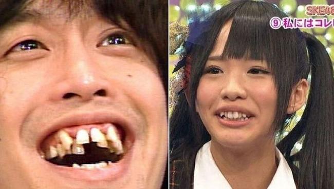 韓国人「日本人と韓国人を区分けする生物学的な特徴とは?」日本人が唯一「八重歯・出っ歯」が激しい理由 韓国の反応