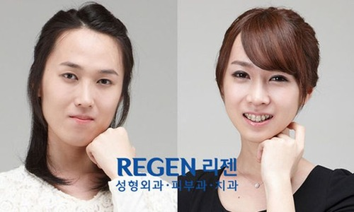 korean_plastic_surgery_41
