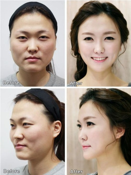 korean_plastic_surgery_44