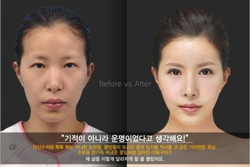 korean_plastic_surgery_25