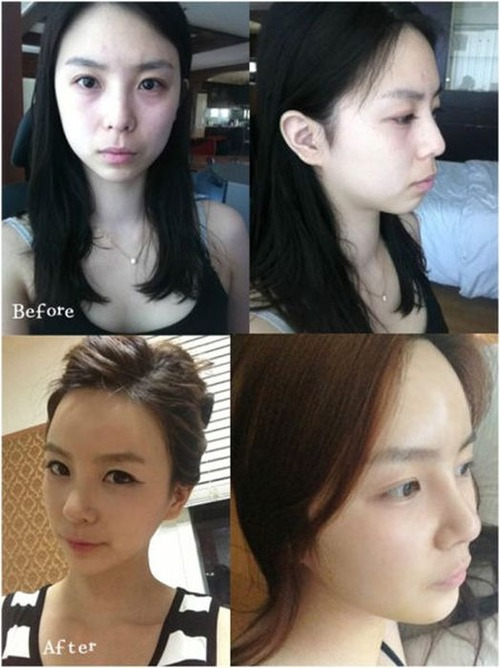 korean_plastic_surgery_12