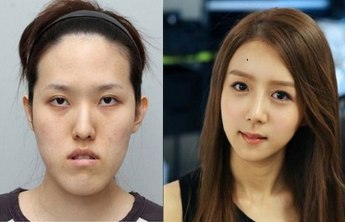 korean_plastic_surgery_07