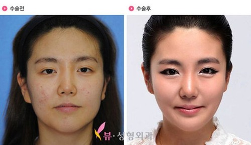 korean_plastic_surgery_36