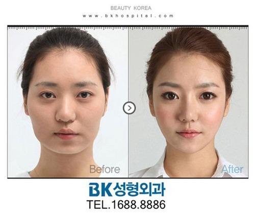 korean_plastic_surgery_38
