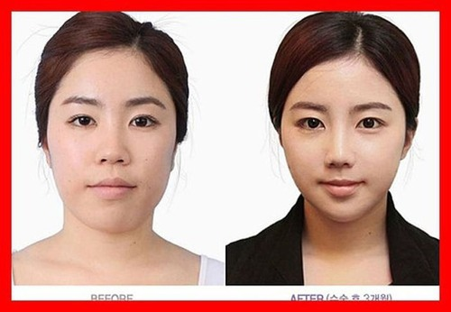 korean_plastic_surgery_09