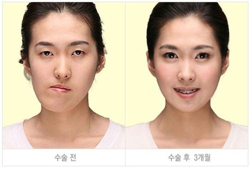 korean_plastic_surgery_28
