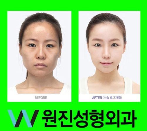 korean0G