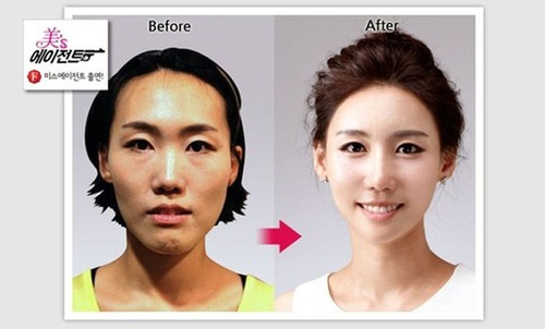 korean_plastic_surgery_14