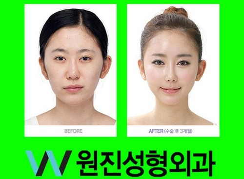 korean_plastic_surgery_15