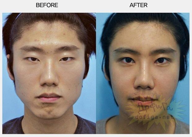 【マジかよ‥】 中国人が韓国で整形手術を受けて帰国した結果wwwwwwwwwww 【画像46枚】 世界の憂鬱