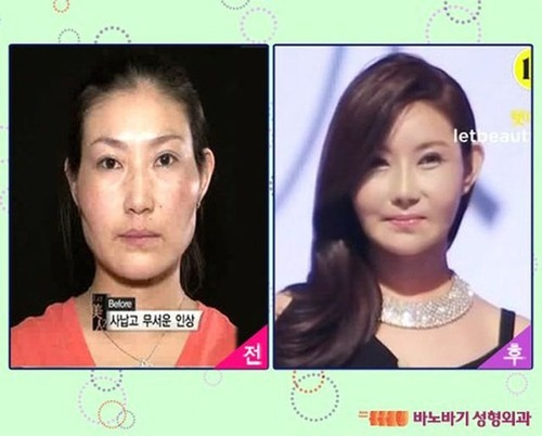 korean_plastic_surgery_03