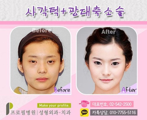 korean_plastic_surgery_29