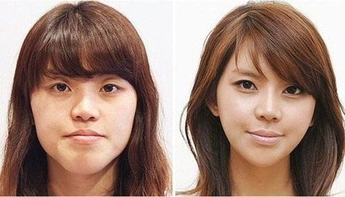 korean_plastic_surgery_52