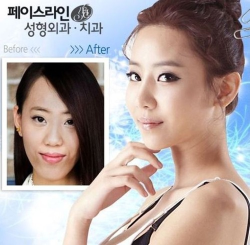 korean_plastic_surgery_32