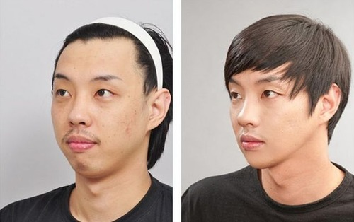 korean_plastic_surgery_02