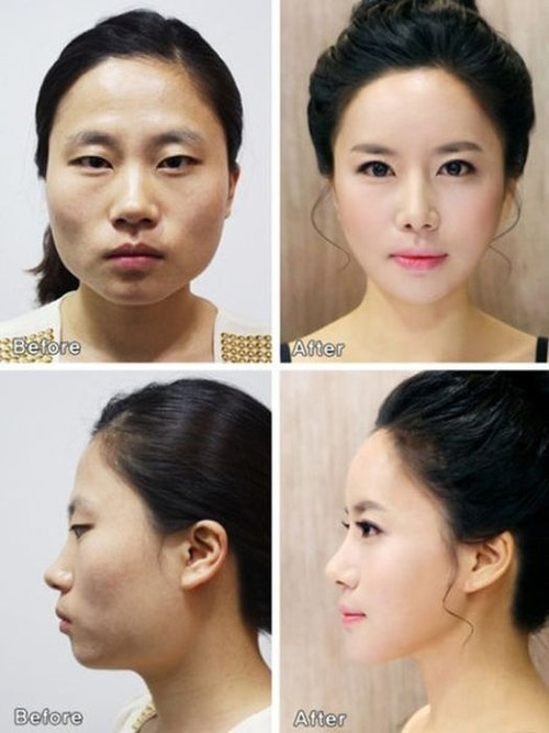 korean_plastic_surgery_01