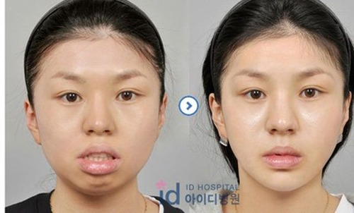 korean_plastic_surgery_46