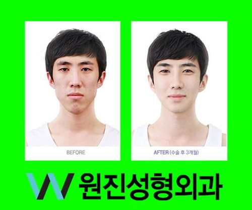 korean_plastic_surgery_16