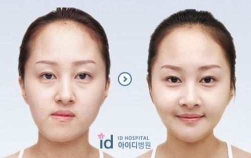 korean_plastic_surgery_35