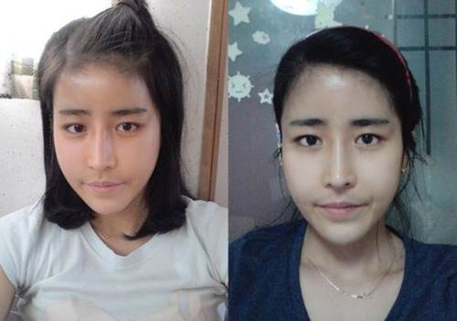 korean_plastic_surgery_08