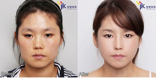 korean_plastic_surgery_18