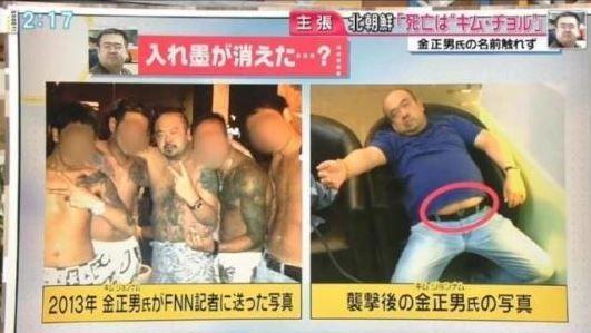 日本のフジTVが報道した写真の中、金正男氏は入れ墨がいっぱいだがマレーシアのマスコミが公開した写真の金正男氏の遺体は、お腹がむき出しになっているにもかかわら