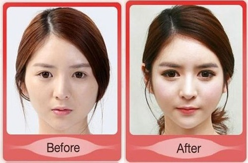 korean_plastic_surgery_04