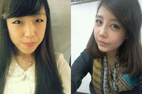 korean_plastic_surgery_13