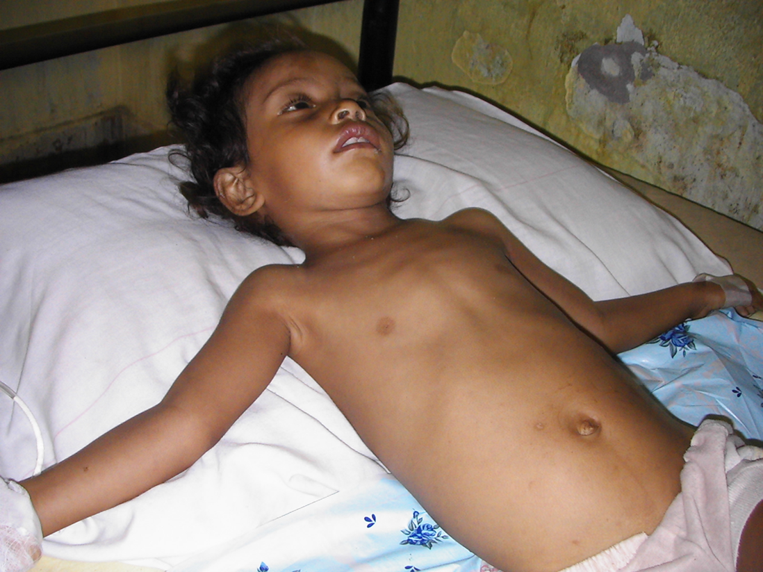 #5   In 2007 Dili a boy with two malaria