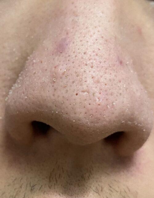 【画像】鼻角栓パックしたら鼻に穴空いたwww