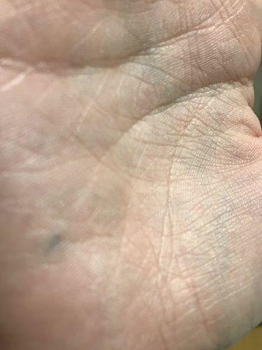 手の中にシャーペンの芯が埋まってる奴wwwwwww