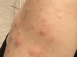 ビエンチャンで蕁麻疹
