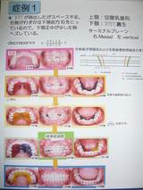 歯列育形成 床矯正 子供歯並び 小児矯正