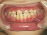 子供の歯並び・歯列育形成・床矯正・小児矯正・反対咬合