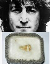 ジョン・レノンの歯がオークションに?